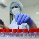 Днями на Донеччині з'явиться апарат, завдяки якому можна діагностувати коронавірус