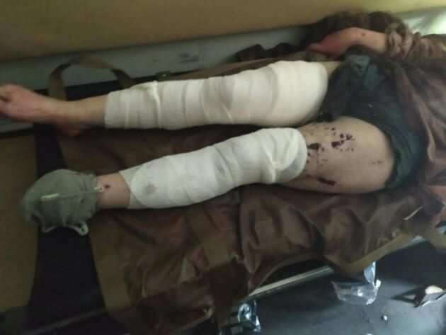 Під Волновахою жінка втратила ногу, намагаючись перетнути лінію розмежування в обхід КПВВ