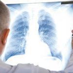 Медсестра з Волновахи отримала критичні ураження легенів через коронавірус. Її рятують у Дніпрі