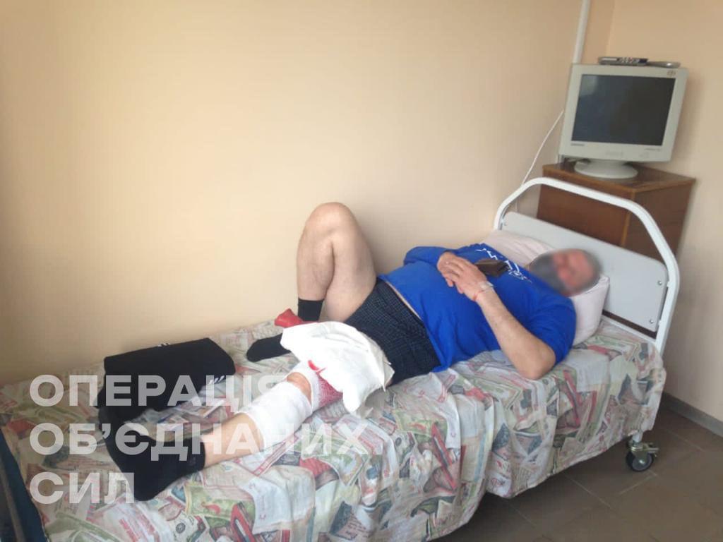 Поранений на Донбасі цивільний