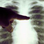 Бахмутські лікарі роблять вчетверо більше рентген-досліджень, ніж допускається
