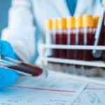 Где сдать платный тест на COVID-19 в Часов Яре, Лимане и Мирнограде (адреса, цены)