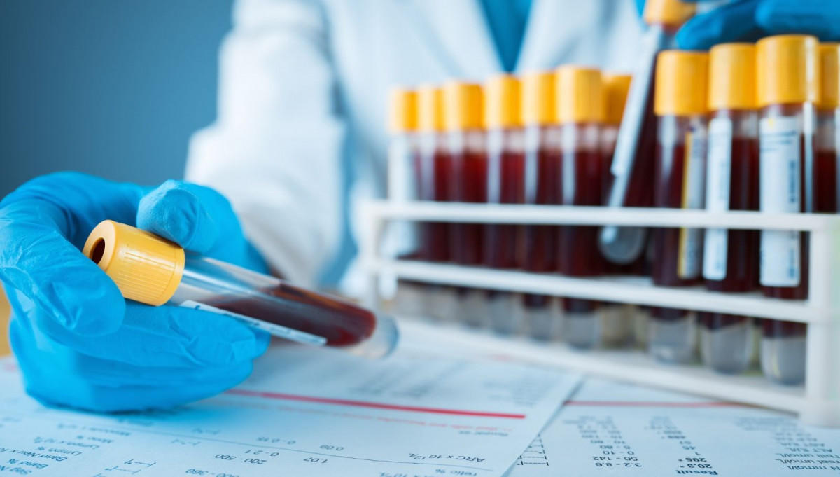 Де у Часів Ярі здати платний тест на коронавірус
